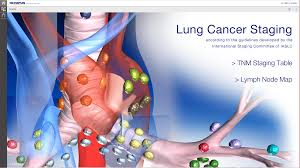 Staging Images by Lung Cancer Staging Table Android Apps On Google Play