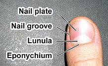 toenail fungus treatments infections u2013 toenail fungus