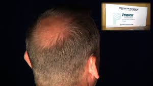 propecia hair loss talk best prices