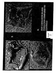 patent us20030134790 bone morphogenetic protein 2 and bone