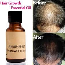 sunburst hair treatment reviews online shopping sunburst hair