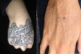 li tattoo removal long island evan b shapiro m d