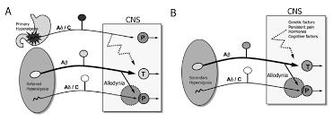 Visceral Somatic Reflex Pathophysiology Of Visceral Pain