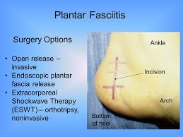 Planters Fasciitis Surgery by Common Ankle And Foot Injuries Ppt Video Online Download