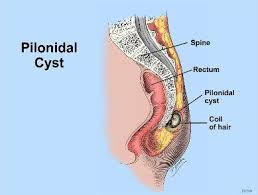 pilonidal cyst location top 3 natural homeopathic remedies for pilonidal cyst sinus treatment