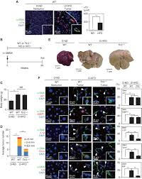 gut microbiota promotes obesity associated liver cancer through