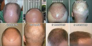 neograft recovery timeline neograft hair restoration the plastic surgery center