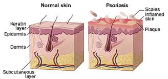 psoriasis treatment psoriasis treatment india stem cell psoriasis therapy india psoriasis