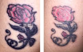 forget the misconceptions about tattoo removal u2026