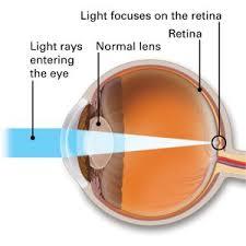 light streaks after cataract surgery what is cataract surgery athwaleye associates