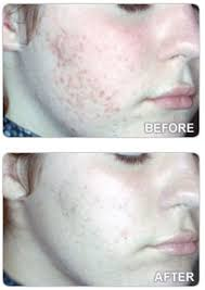 neutrogena light therapy acne mask before and after is acne affecting your confidence we put the latest light