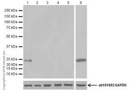 anti prolactin antibody epr19386 ab183967 abcam