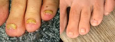 nail fungus update june 2016 nail fungus diary