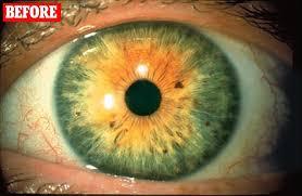 did latisse drug to make my eyelashes lusher turn my green eyes