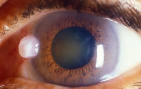 Can Cataracts Cause Blindness Cataracts The Main Cause Of Blindness In Indonesia