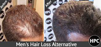 pics of scalp micropigmentation on people with long hair men s hair loss alternative scalp micropigmentation