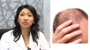 Platelet Rich Plasma Hair Loss Prp Therapy Beat Hair Loss With Platelet Rich Plasma Prp