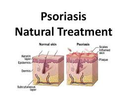 psoriasis treatment 80 best psoriasis treatment images on pinterest health care