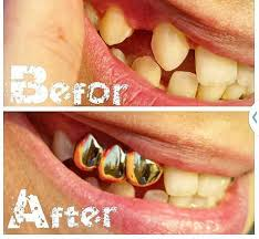 diamond stud in tooth fix missing teeth at home no dentist required affordable