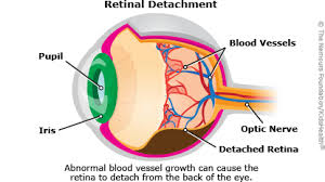 Can Lasik Cause Blindness Surgeries And Procedures Retinopathy Of Prematurity