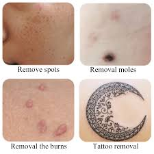 laser mole removal tool dark spot remover moleschine freckle
