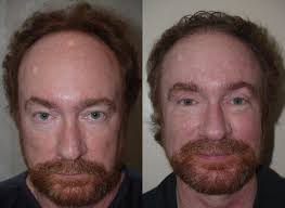 plastic hair hair transplant before and after pictures plastic surgery