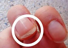 how to strengthen nails naturally fast thick home remedies