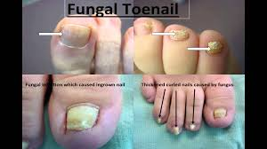nail salon u0027s guide to foot and nail conditions youtube