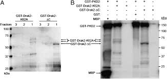 target danvers ma black friday hours protein kinase d orchestrates the activation of drak2 in response