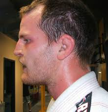longer on top and cot over the ears haircuts how to prevent and treat cauliflower ear and if it means you