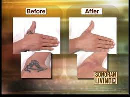 how can i get a tattoo removed 6 techniques explained