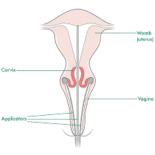 Human Anatomy Cervix Brachytherapy Information And Support Macmillan Cancer Support
