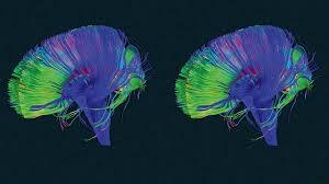 your brain has a u201cdelete u201d button u2013here u0027s how to use it