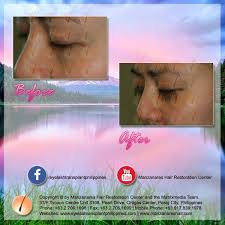 hair transplant costs in the philippines before and after eyelash hair transplant manila philippines