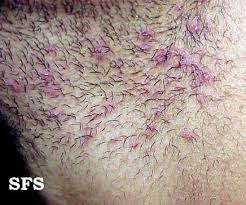 types of ingrown hair ingrown hair prevention infection scars pictures cure removal