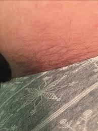 is this normal for pubic hair glow community