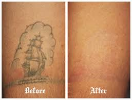 laser tattoo removal enfield tattoo