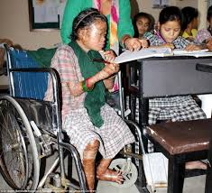 nepalese ichthyosis sufferer u0027s life transformed by a simple tub of