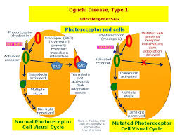 Is Night Blindness Hereditary Oguchi Disease Type 1 Hereditary Ocular Diseases