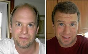 hair transplant month by month pictures hair transplant blog bobman s hair loss story hair transplant 1