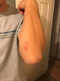 what do bed bug bites look like bed bug bites picture of excalibur hotel casino las vegas