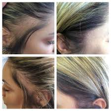 womans hair thinning on sides scalp tattoo for hair loss medicine of cosmetics adelaide