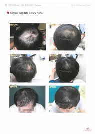 drcellapy hl plus anti hair loss ampoule scalp care excessive