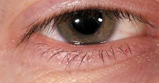 What Can Cause Blindness Can Tea Tree Oil Cause Blindness Livestrong Com