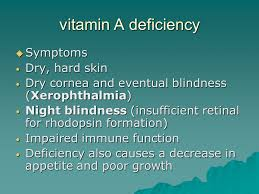 Night Blindness Caused By Vitamin A Deficiency Vitamin A Ppt Online Download