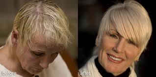 hair weaves for thinning hair αποτέλεσμα εικόνας για hairstyles for hair loss women glam