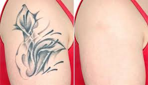 all you need to know about laser tattoo removal u2013 australian all blog