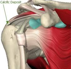 Anatomy Of Shoulder Muscles And Tendons Calcific Tendonitis Brisbane Knee And Shoulder Clinic