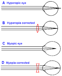 What Structure Of The Eye Focuses Light On The Retina Chapter 7 Vision