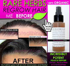 leahs super fast hair growth system natural hair growth products